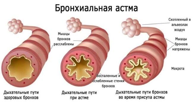 астма и масло черного тмина