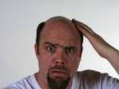 Облысение и выпадение волос