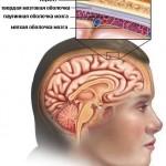 лечение менингита