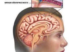 Эпидемический менингит