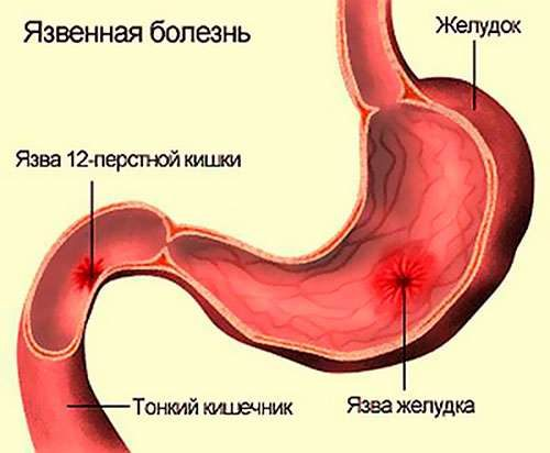 язва желудка и черный тмин